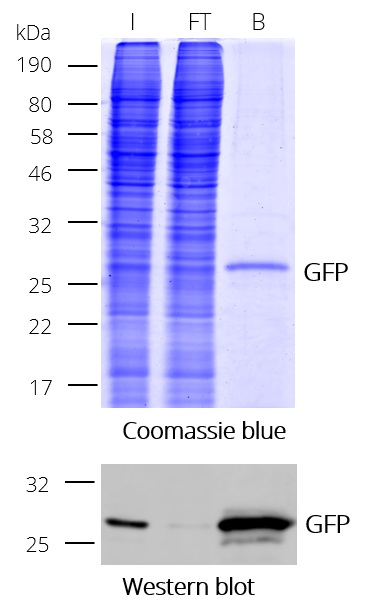 GFP-Trap Dynabeads_Coomassie_WB klein_2