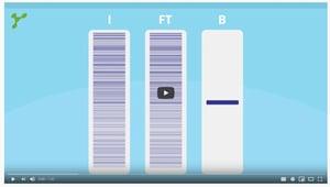 YouTube immunoprecipitation video