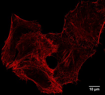 Spot super resolution microscopy